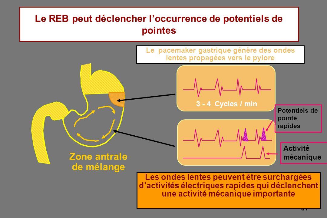 31 Le REB peut déclencher loccurrence de potentiels de pointes 3 - 4 Cycles / min Zone antrale de mélange Le pacemaker gastrique génère des ondes lent