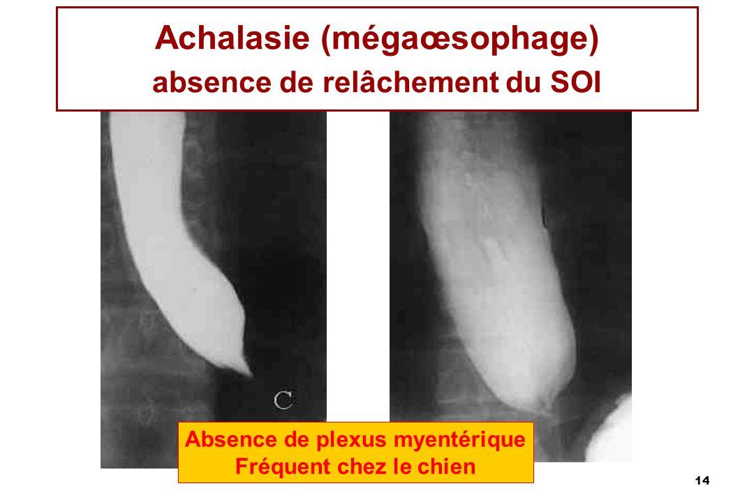 14 Achalasie (mégaœsophage) absence de relâchement du SOI Absence de plexus myentérique Fréquent chez le chien