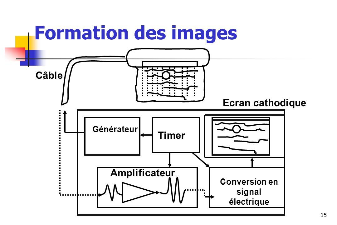 15 Câble Ecran cathodique Amplificateur Générateur Conversion en signal électrique Timer Formation des images