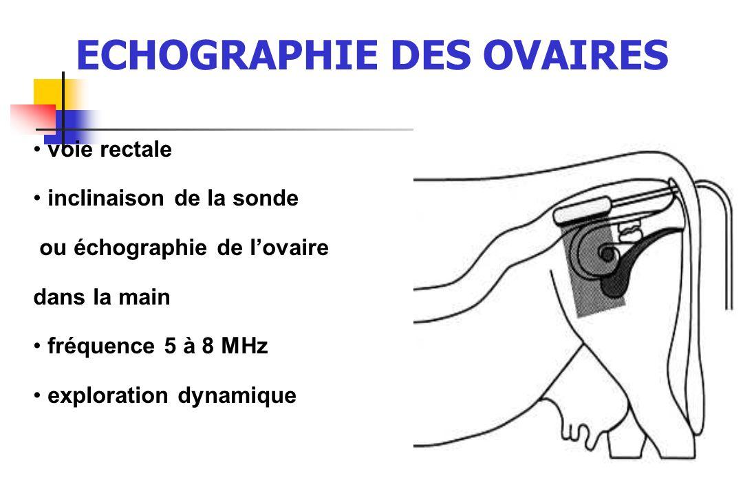 46 voie rectale inclinaison de la sonde ou échographie de lovaire dans la main fréquence 5 à 8 MHz exploration dynamique ECHOGRAPHIE DES OVAIRES