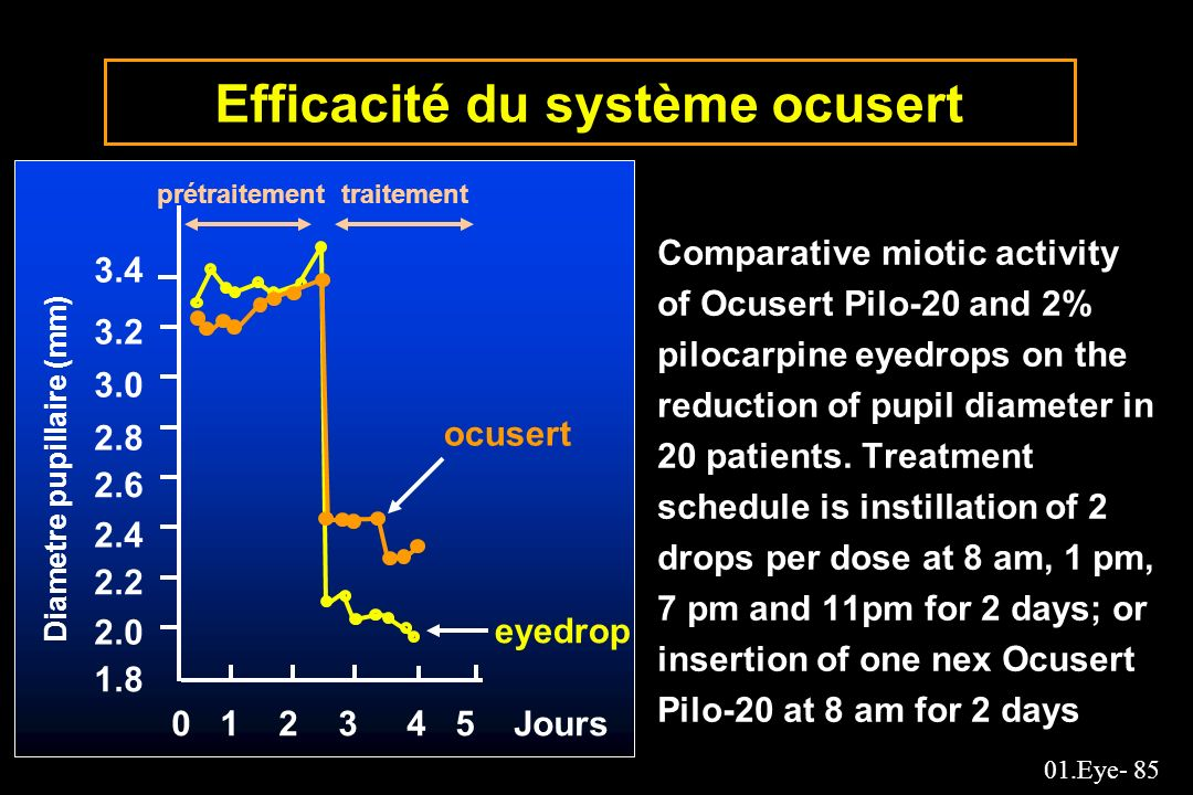01.Eye- 85 Efficacité du système ocusert Comparative miotic activity of Ocusert Pilo-20 and 2% pilocarpine eyedrops on the reduction of pupil diameter