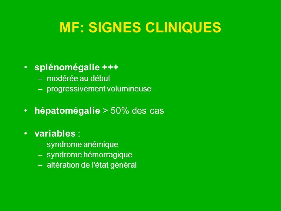 MF: SIGNES CLINIQUES splénomégalie +++ –modérée au début –progressivement volumineuse hépatomégalie > 50% des cas variables : –syndrome anémique –synd