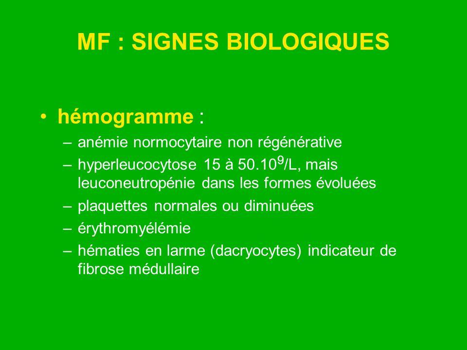 MF : SIGNES BIOLOGIQUES hémogramme : –anémie normocytaire non régénérative –hyperleucocytose 15 à 50.10 9 /L, mais leuconeutropénie dans les formes év