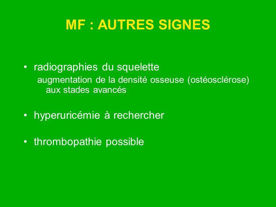 MF : AUTRES SIGNES radiographies du squelette augmentation de la densité osseuse (ostéosclérose) aux stades avancés hyperuricémie à rechercher thrombo