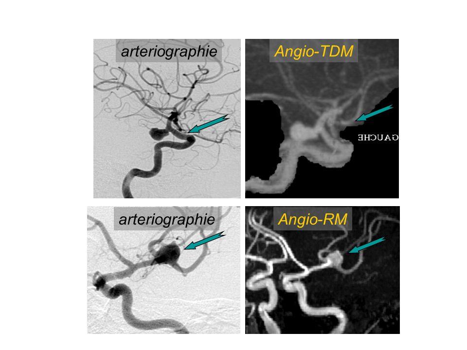 arteriographieAngio-TDM arteriographieAngio-RM