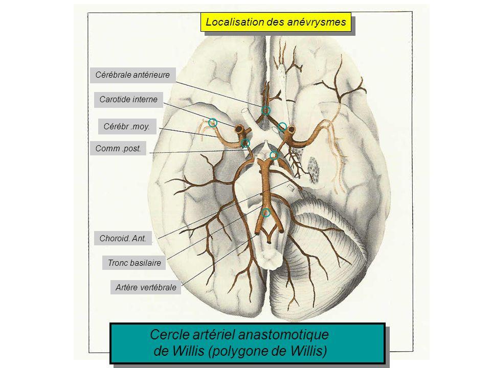 Cercle artériel anastomotique de Willis (polygone de Willis) Cercle artériel anastomotique de Willis (polygone de Willis) Cérébrale antérieure Carotid