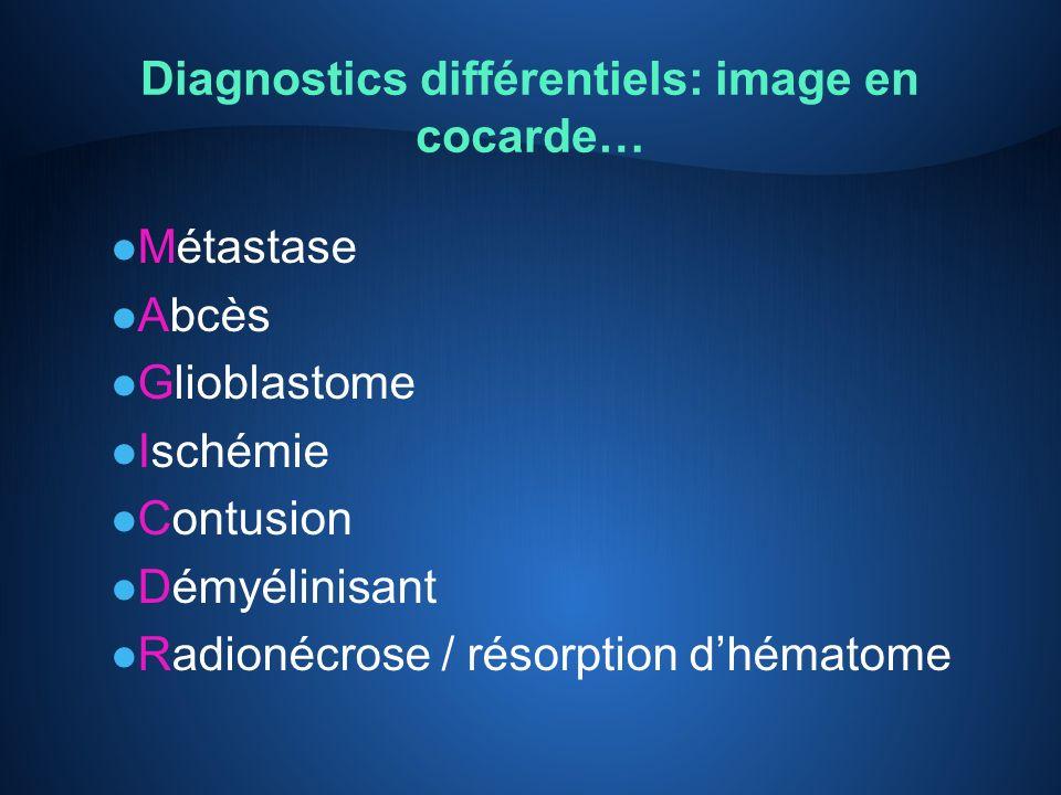 Diagnostics différentiels: image en cocarde… l Métastase l Abcès l Glioblastome l Ischémie l Contusion l Démyélinisant l Radionécrose / résorption dhé