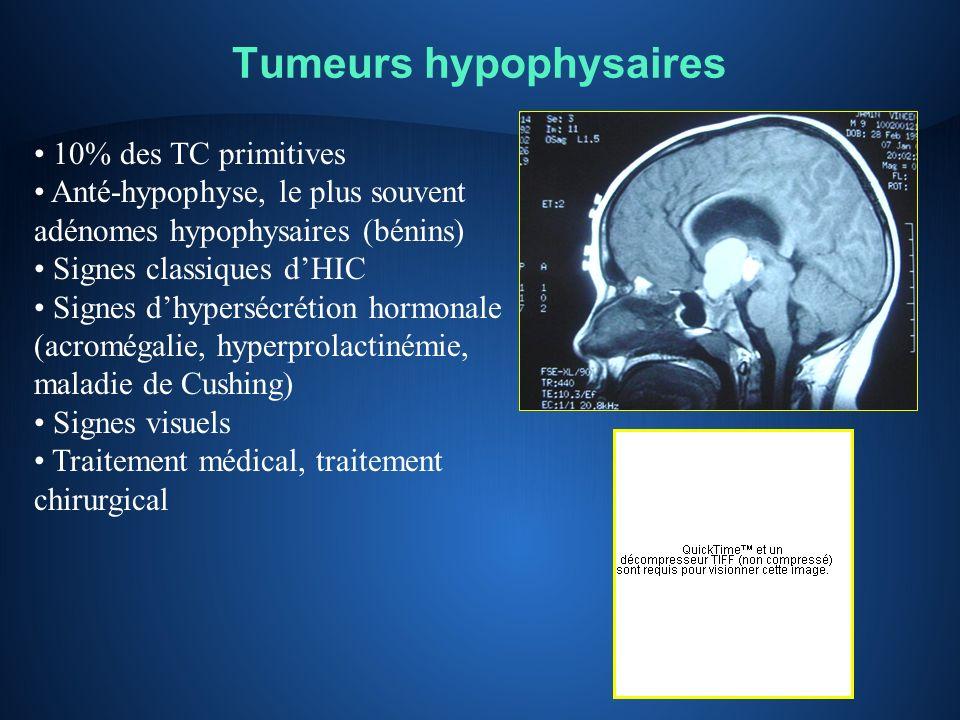 Tumeurs hypophysaires 10% des TC primitives Anté-hypophyse, le plus souvent adénomes hypophysaires (bénins) Signes classiques dHIC Signes dhypersécrét
