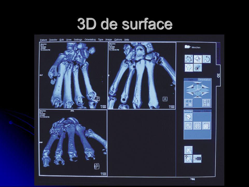 3D de surface