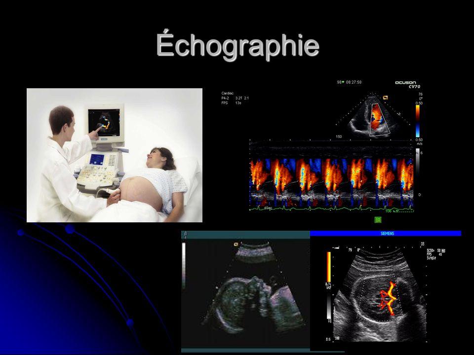 Endoscopie virtuelle