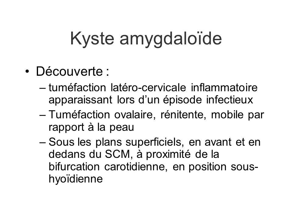 Kyste amygdaloïde Découverte : –tuméfaction latéro-cervicale inflammatoire apparaissant lors dun épisode infectieux –Tuméfaction ovalaire, rénitente,