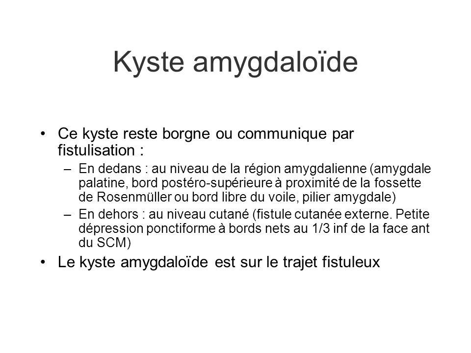 Kyste amygdaloïde Ce kyste reste borgne ou communique par fistulisation : –En dedans : au niveau de la région amygdalienne (amygdale palatine, bord po