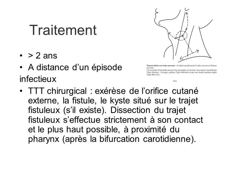 Traitement > 2 ans A distance dun épisode infectieux TTT chirurgical : exérèse de lorifice cutané externe, la fistule, le kyste situé sur le trajet fi
