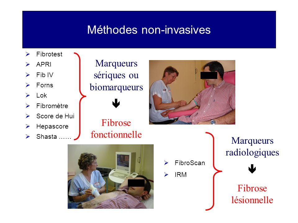Méthodes non-invasives Fibrotest APRI Fib IV Forns Lok Fibromètre Score de Hui Hepascore Shasta …… FibroScan IRM Marqueurs sériques ou biomarqueurs Fi