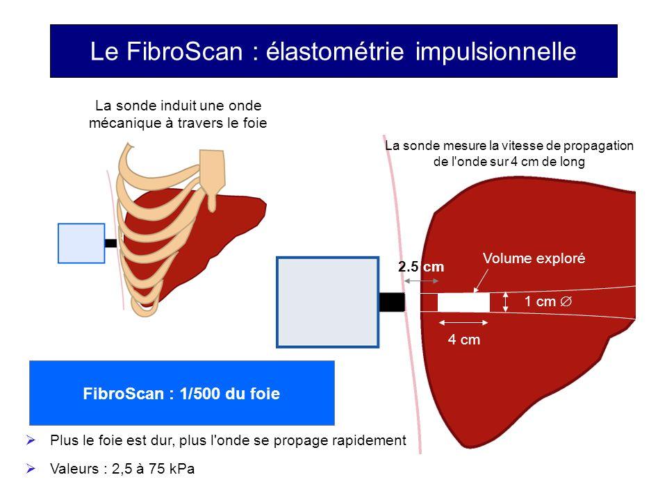 Le FibroScan : élastométrie impulsionnelle 2.5 cm 4 cm 1 cm Volume exploré FibroScan : 1/500 du foie La sonde induit une onde mécanique à travers le f