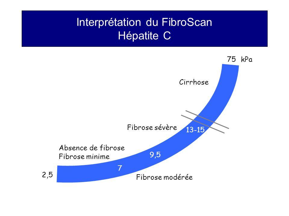 Interprétation du FibroScan Hépatite C kPa75 7 9,5 13-15 2,5 Cirrhose Fibrose sévère Fibrose modérée Absence de fibrose Fibrose minime