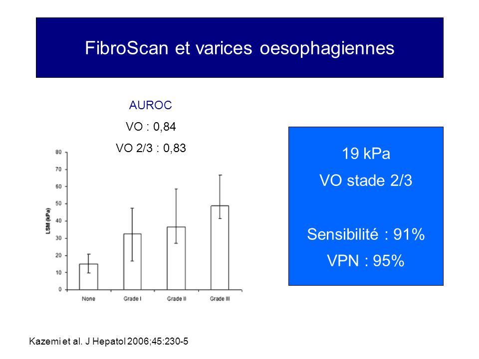FibroScan et varices oesophagiennes Kazemi et al. J Hepatol 2006;45:230-5 AUROC VO : 0,84 VO 2/3 : 0,83 19 kPa VO stade 2/3 Sensibilité : 91% VPN : 95