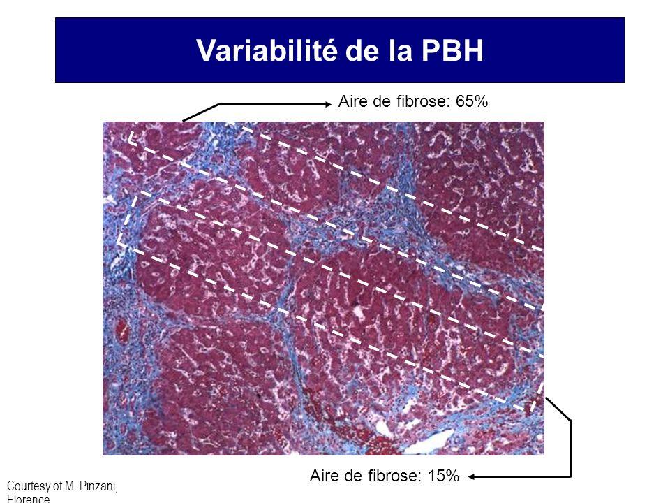 Aire de fibrose: 65% Aire de fibrose: 15% Courtesy of M. Pinzani, Florence Variabilité de la PBH