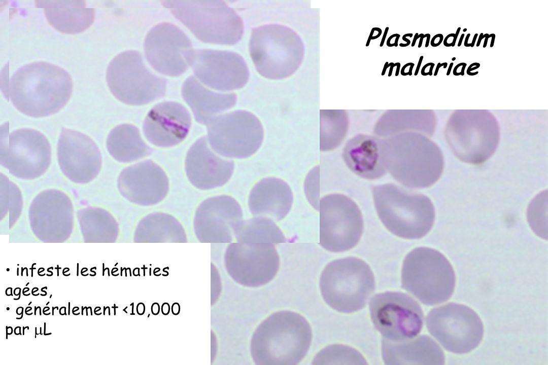 Plasmodium malariae C NRP infeste les hématies agées, généralement <10,000 par L