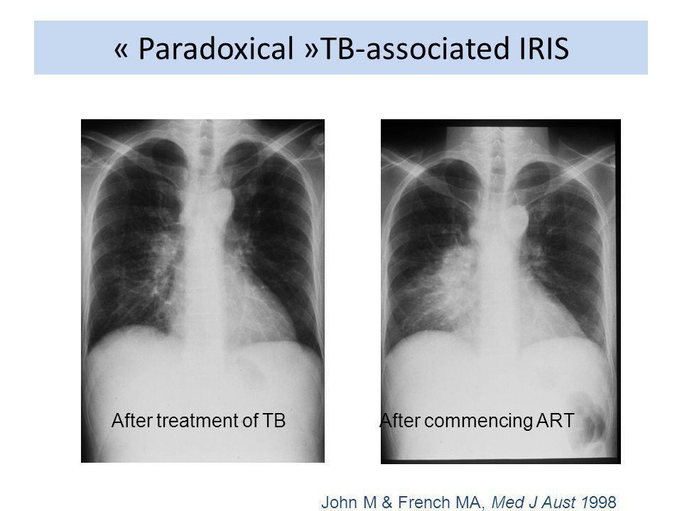 Prise en charge thérapeutique Mal codifiée Vis-à-vis des ARV : -La mortalité par IRIS est faible, la majorité des cas se résolvant spontanément en quelques semaines -Si la réaction inflammatoire ne menace pas le pronostic vital, la plupart des experts recommandent la poursuite des ARV -Faut il retarder linitiation des ARV chez un patient traité pour tuberculose .