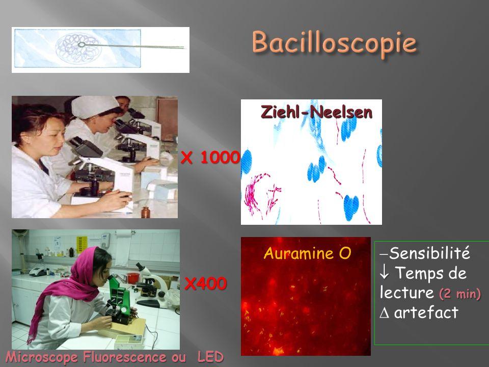 Auramine O Ziehl-Neelsen X 1000 X400 Sensibilité (2 min) Temps de lecture (2 min) artefact Microscope Fluorescence ou LED