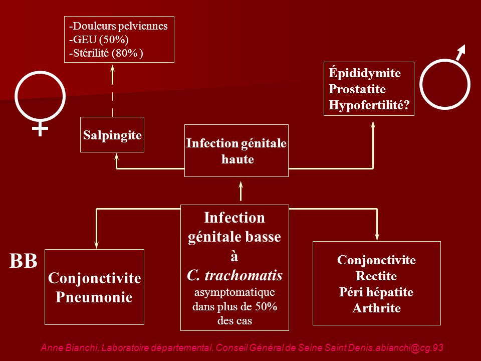 Infection génitale basse à C. trachomatis asymptomatique dans plus de 50% des cas Infection génitale haute Salpingite Épididymite Prostatite Hypoferti