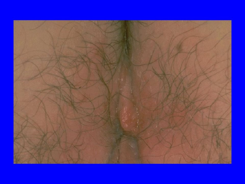 24/05/06 -AC12 Paris59 Genital HSV-2 shedding 388/407 CVL without semen contamination –Genital HSV-2 DNA Ulcer +/- CVL= 202 (Ulcer = 188; Ulcer + CVL = 131; CVL only = 14) Primary Genital Herpes (HSV-2 seroneg) = 24 0 Freq HSV-2 shedding HIV+HIV- Mean CVL HSV-2 DNA HIV+HIV- N=184N=204N=98N=47 log 10 copies/ml 20 40 60 80 100 % P<0.001 54% 23% 0 1 2 3 4 5 6 3.854.13 NS Genital HSV-2 shedding occured more frequently among HIV-1 + women