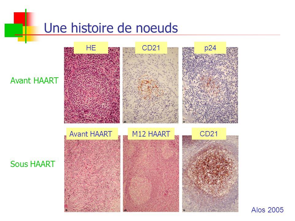 Une histoire de noeuds Avant HAARTM12 HAART CD21 Avant HAART Sous HAART HECD21p24 Alos 2005