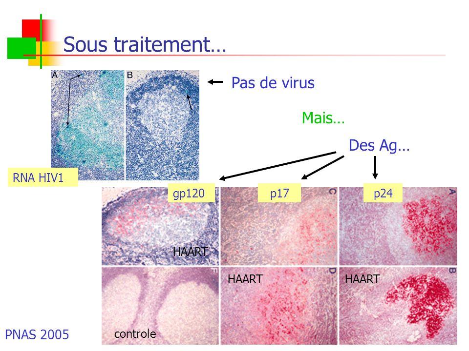 Sous traitement… Pas de virus Mais… Des Ag… RNA HIV1 gp120 controle p17p24 HAART PNAS 2005