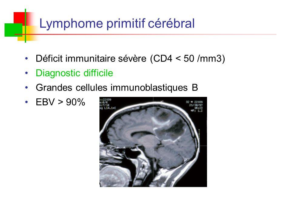 Lymphome primitif cérébral Déficit immunitaire sévère (CD4 < 50 /mm3) Diagnostic difficile Grandes cellules immunoblastiques B EBV > 90%