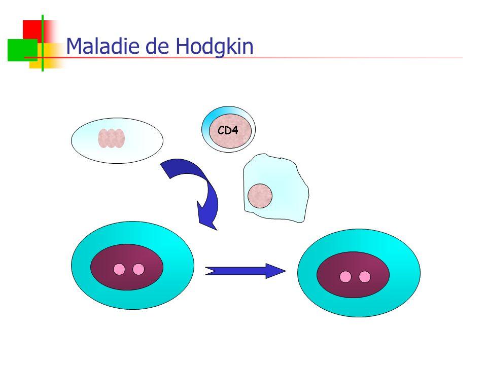 Maladie de Hodgkin CD4