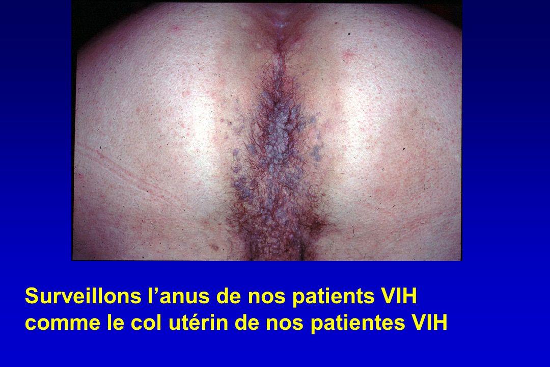 Surveillons lanus de nos patients VIH comme le col utérin de nos patientes VIH