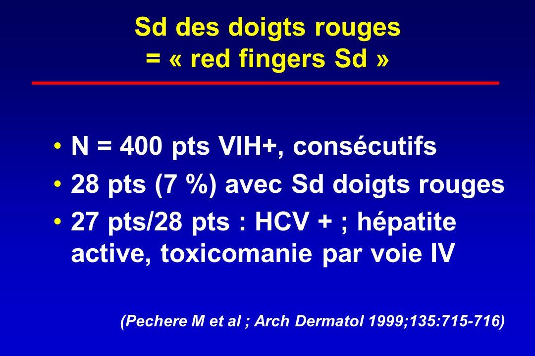 Sd des doigts rouges = « red fingers Sd » N = 400 pts VIH+, consécutifs 28 pts (7 %) avec Sd doigts rouges 27 pts/28 pts : HCV + ; hépatite active, to