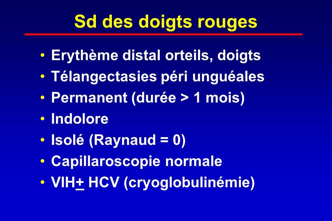 Sd des doigts rouges Erythème distal orteils, doigts Télangectasies péri unguéales Permanent (durée > 1 mois) Indolore Isolé (Raynaud = 0) Capillarosc