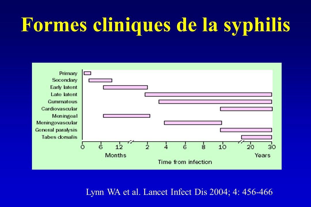 Formes cliniques de la syphilis Lynn WA et al. Lancet Infect Dis 2004; 4: 456-466