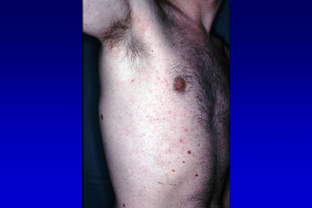 Infections Staphylococcies Syphilis Mycobactéries ------------------------------------------------------ HSV, VZV, EBV HPV ------------------------------------------------------ Candidoses Dermatophyties ------------------------------------------------------ Gale