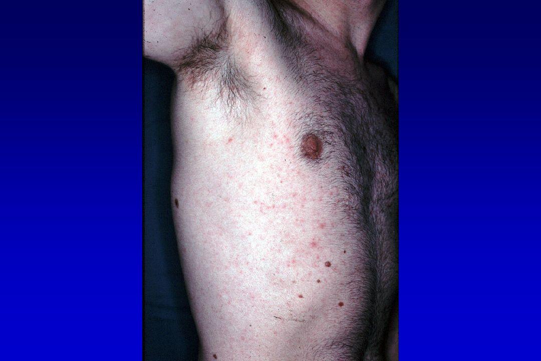 Maladie de Kaposi : pronostic KS c% VIH = SIDA Pronostic est lié : VIH +++ : IO ; CD4+ KS : viscéral classification TIS Tumor : KS Immune : CD4+ System : IO