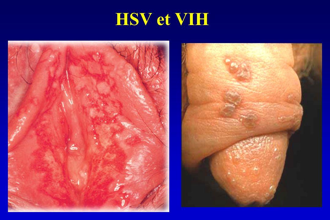 HSV et VIH