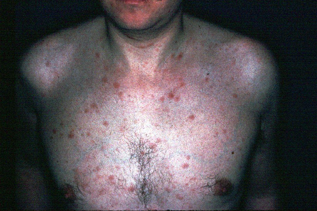 Dermatoses virales et VIH HSV VZV EBV (LOC) ------------------------------------ HPV Pox V (MC)