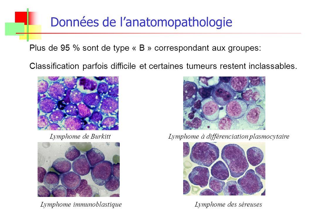 Plus de 95 % sont de type « B » correspondant aux groupes: Classification parfois difficile et certaines tumeurs restent inclassables. Lymphome de Bur