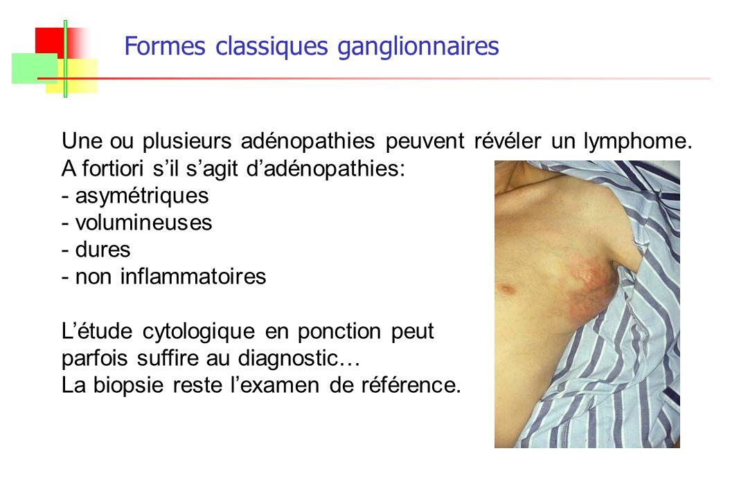 Une ou plusieurs adénopathies peuvent révéler un lymphome. A fortiori sil sagit dadénopathies: - asymétriques - volumineuses - dures - non inflammatoi