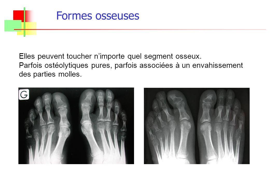 Elles peuvent toucher nimporte quel segment osseux. Parfois ostéolytiques pures, parfois associées à un envahissement des parties molles. Formes osseu