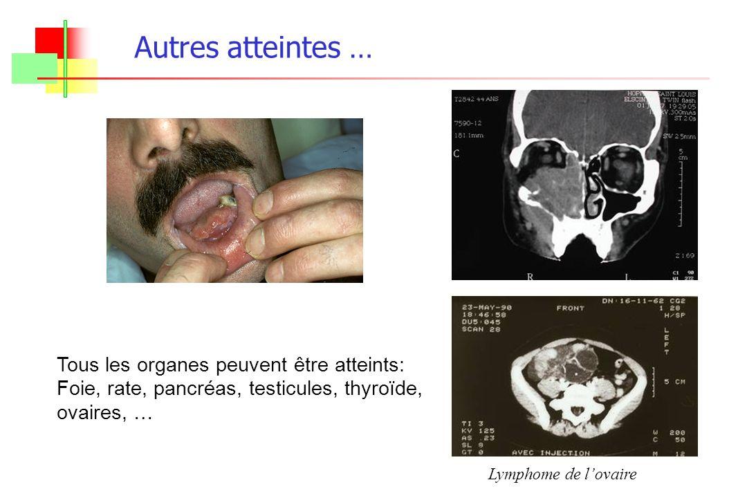 Autres atteintes … Tous les organes peuvent être atteints: Foie, rate, pancréas, testicules, thyroïde, ovaires, … Lymphome de lovaire