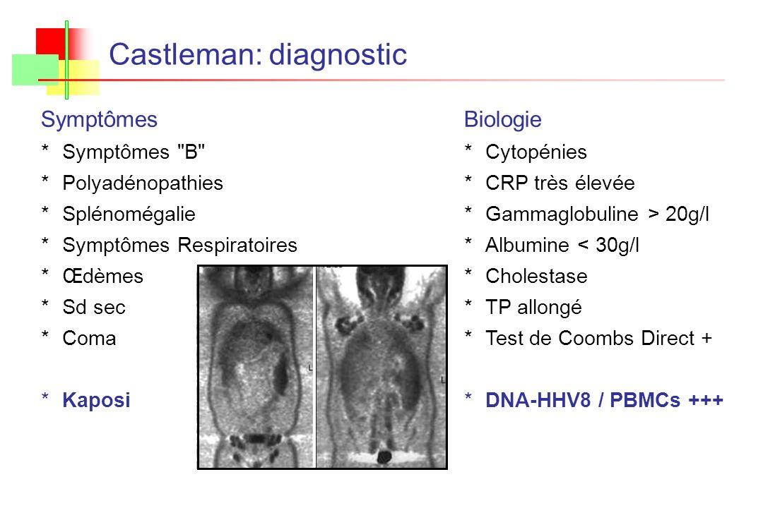 Castleman: diagnostic Biologie *Cytopénies *CRP très élevée *Gammaglobuline > 20g/l *Albumine < 30g/l *Cholestase *TP allongé *Test de Coombs Direct +