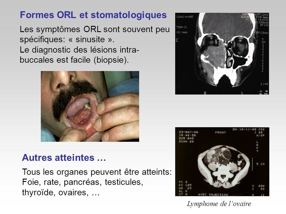 Formes ORL et stomatologiques Les symptômes ORL sont souvent peu spécifiques: « sinusite ». Le diagnostic des lésions intra- buccales est facile (biop