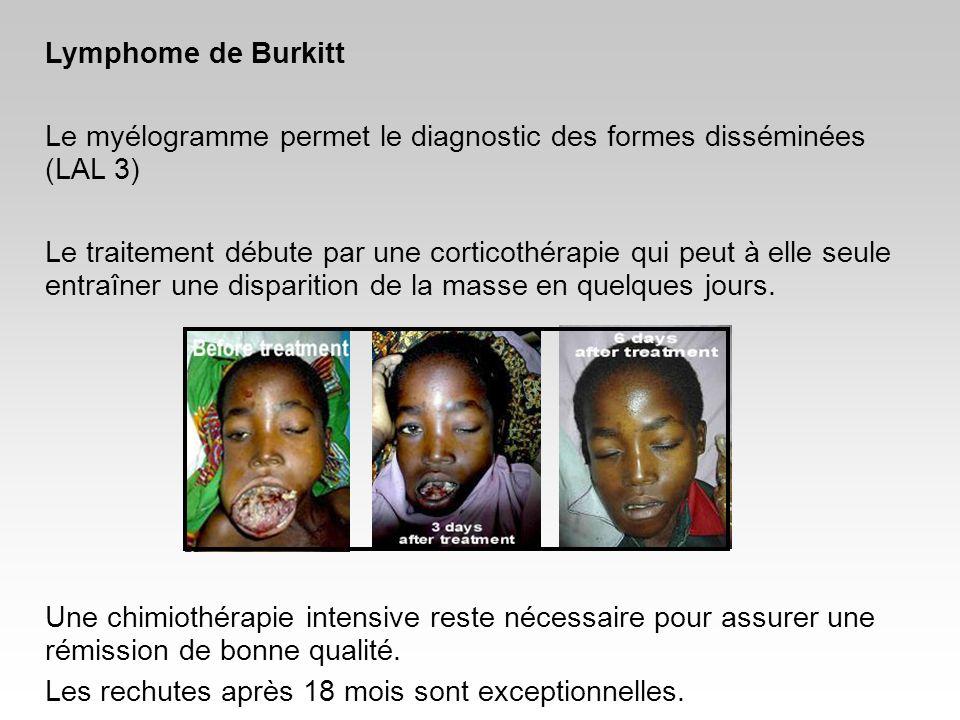 Lymphome de Burkitt Le myélogramme permet le diagnostic des formes disséminées (LAL 3) Le traitement débute par une corticothérapie qui peut à elle se