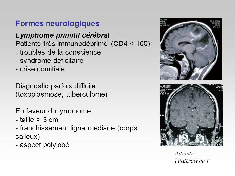 Formes neurologiques Lymphome primitif cérébral Patients très immunodéprimé (CD4 < 100): - troubles de la conscience - syndrome déficitaire - crise co