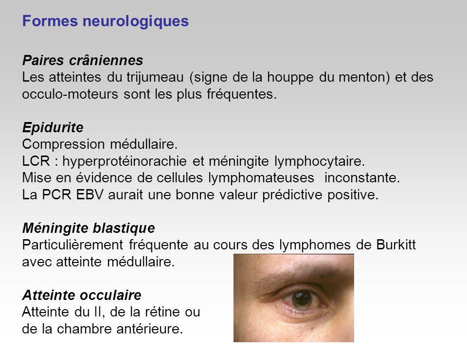 Formes neurologiques Paires crâniennes Les atteintes du trijumeau (signe de la houppe du menton) et des occulo-moteurs sont les plus fréquentes. Epidu