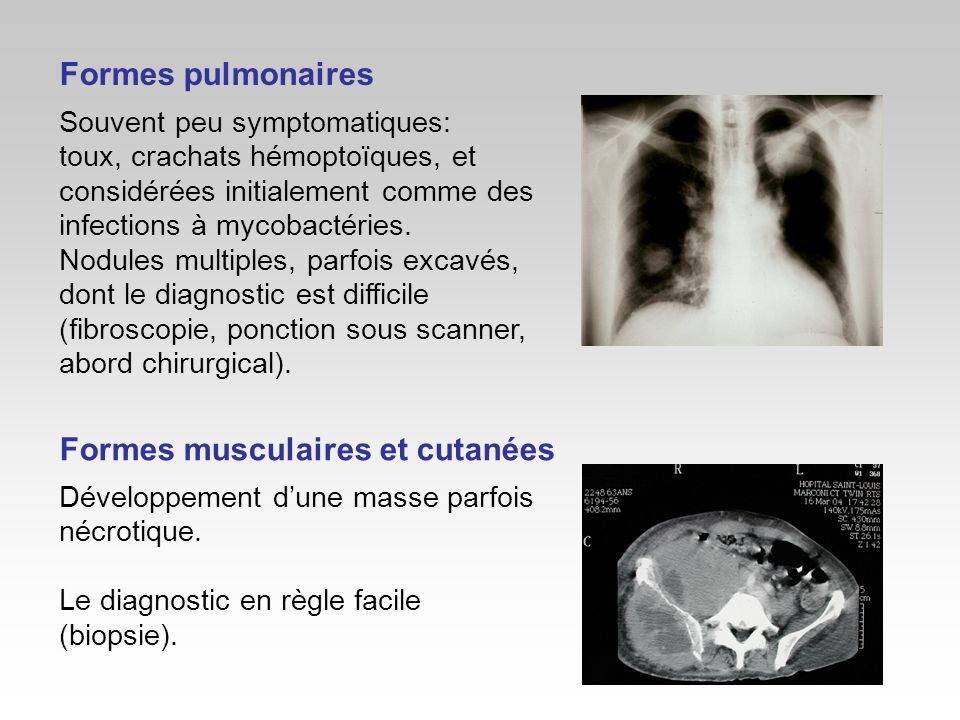 Formes pulmonaires Souvent peu symptomatiques: toux, crachats hémoptoïques, et considérées initialement comme des infections à mycobactéries. Nodules