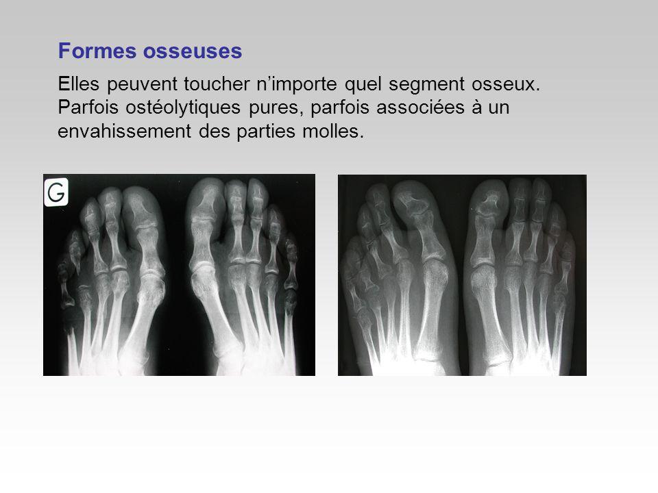 Formes osseuses Elles peuvent toucher nimporte quel segment osseux. Parfois ostéolytiques pures, parfois associées à un envahissement des parties moll